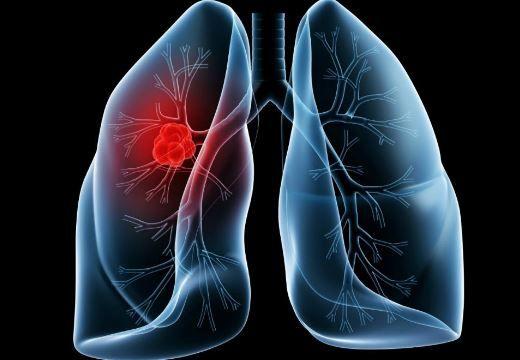 Cum tratăm bronșita acută. Cele mai bune remedii! Nu folosiți antibiotic