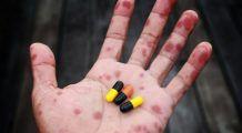 Scarlatina, boala extrem de contagioasă pentru care nu există vaccin. Prevenție și tratament în sezonul rece