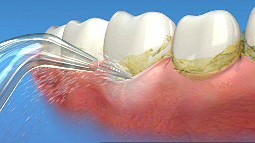 Când este bine să folosești dușul bucal și periuța interdentară și cum trebuie utilizate pentru a nu distruge gingia