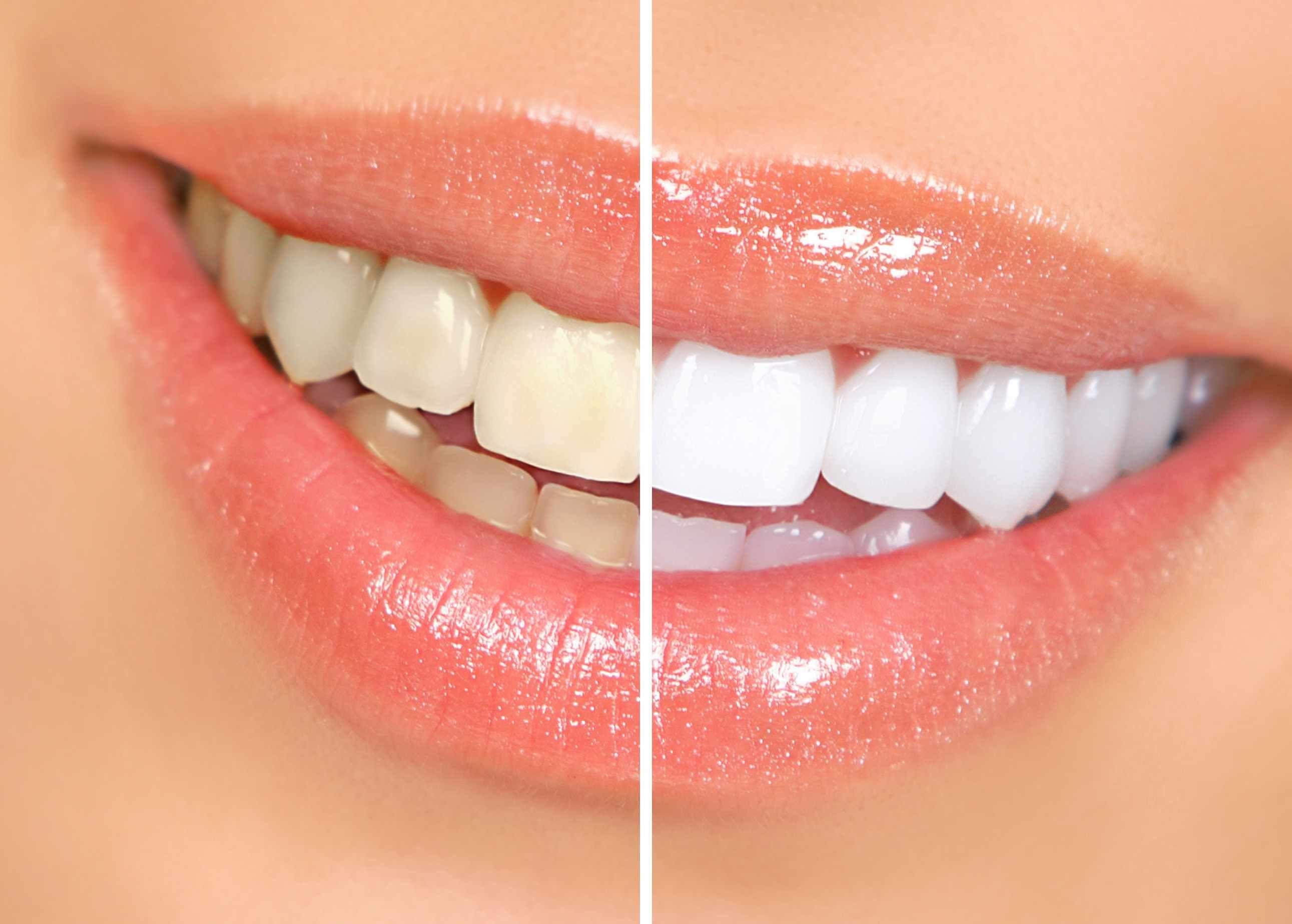 Îți dorești dinți mai albi? Ce trebuie să știi înainte de a apela la albirea dentară