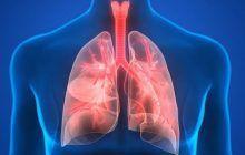 Pneumonia, boala care ucide un copil la fiecare 39 de secunde. Cum poate fi prevenită această maladie