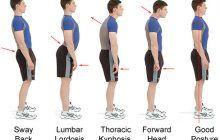 Defectele de postură și bolile pe care acestea le declanșează