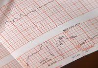 Patru investigații esențiale pentru sănătatea inimii