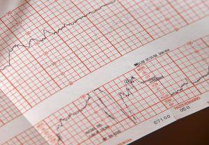 Patru investigații esențiale pentru sanatatea inimii