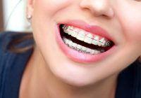 """Tot ce trebuie să știm despre aparatul dentar. Sunt fundamentate temerile: """"Îmi vor cădea dinții?"""" """"O să doară?"""" """"Îmi va afecta vorbirea?"""""""