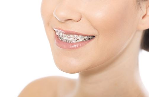 Aparatul dentar, cât de greu te obișnuiești cu el și care sunt cei mai importanți pași imediat după montarea lui