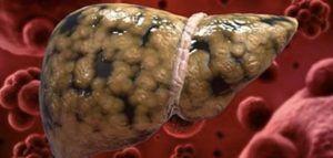 5 obiceiuri care îți distrug ficatul. Mulți oameni fac greșelile acestea
