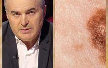 Florin Călinescu a povestit ce simptome a avut înainte să afle că are cancer de piele. Nu trebuie ignorate!