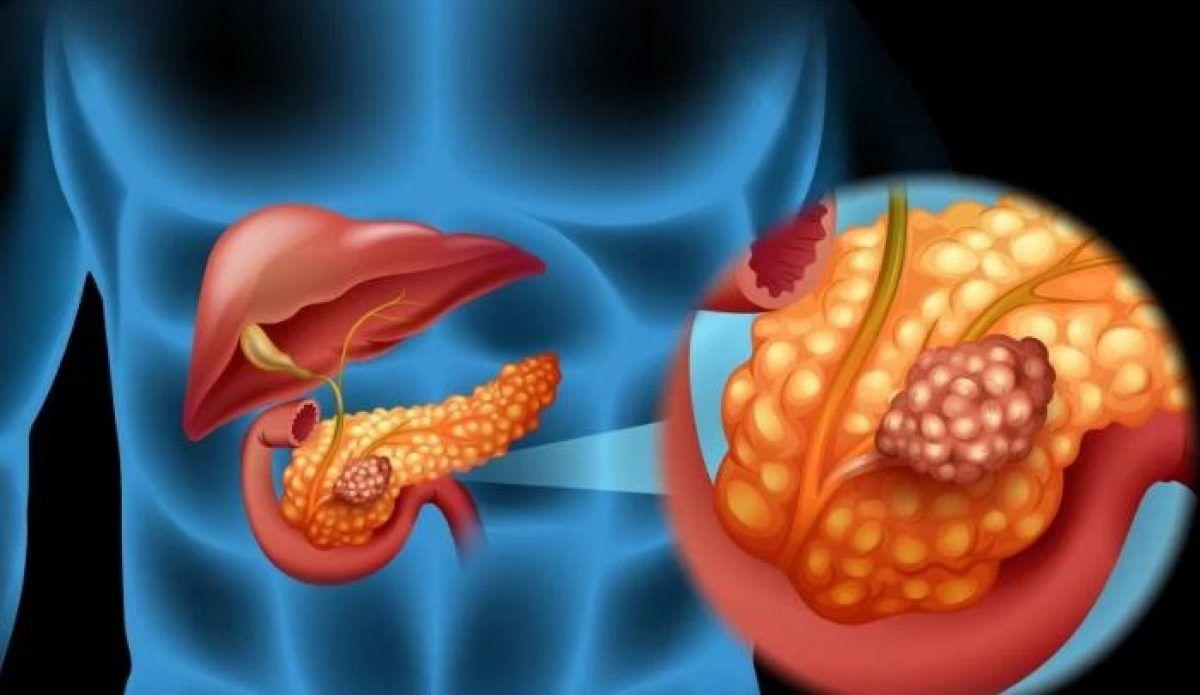 Pancreatită