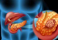 Cum știi că ai pancreasul inflamat. Simptomele sunt grave și apar în primele zile de la instalarea bolii