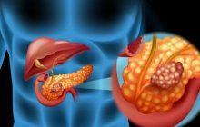 Ce trebuie să știm despre cancerul de pancreas, boala agresivă cu cea mai mică rată de supraviețuire dintre toate cancerele