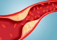 Care e valoarea normală a colesterolului și ce simptome apar când nivelul este foarte crescut