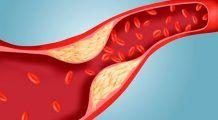 Scazi colesterolul cu aceste 10 căi simple, naturale și eficiente