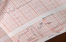 Când ai nevoie de o electrocardiogramă? Foarte bine de știut!