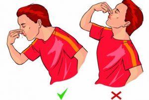 Cum recomanda medicii sa reacționezi daca iți curge sange din nas