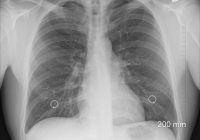 Radiografiile dese cresc riscul de cancer. Cât sunt de periculoase, de fapt, radiațiile emise în timpul investigațiilor medicale