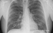 O nouă boală misterioasă de plămâni! Peste 100 de oameni au fost afectați