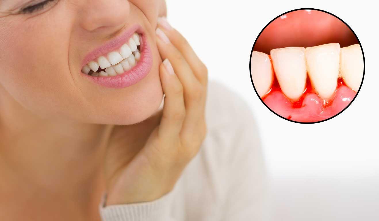 Ce cauzează sângerările gingivale și cum le putem stopa