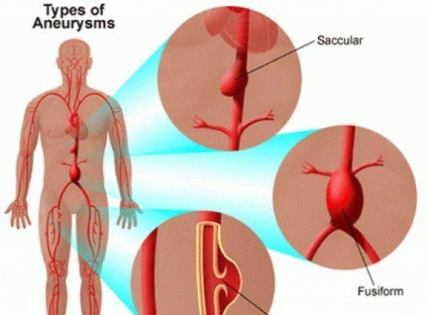 Analiza care depistează anevrismul, indiferent în ce parte a aortei se situează