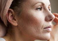 Procedura inovatoare care te poate scăpa de cicatrice, pete pigmentare, riduri și vergeturi