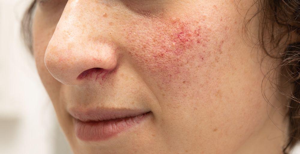 Leziunile vasculare și pigmentare ale pielii se ameliorează sau dispar. Procedeul uimitor fără riscuri sau durere împotriva rozaceei