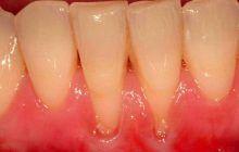 Retracția gingivală, afecțiunea care duce la sensibilitate, respirație urât mirositoare, chiar și la pierderea dinților