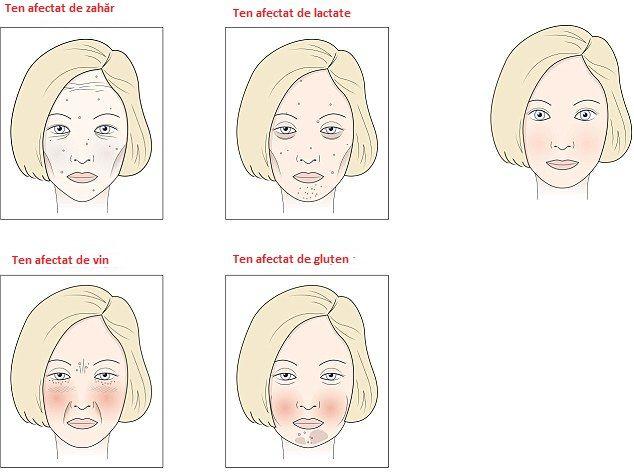 Un dermatolog a dezvăluit ce alimente și băuturi îmbătrânesc pielea. Cauzează riduri și cearcăne