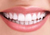 Cum ne alegem aparatul dentar? Avantajele și dezavantajele fiecărei opțiuni, dezvăluite de ortodont