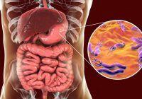 Helicobacter pylori, bacteria care poate declanșa cancerul de stomac. Ce simptome are și cum se transmite, explicațiile medicului gastroenterolog