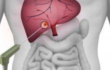 Tratamente oncologice inovatoare pentru pacienții români. Oncologie intervențională în tratamentul cancerului hepatic