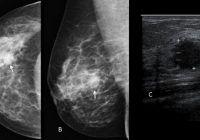 Ce trebuie să știe femeile despre mamografie și ecografie mamară. Pașii pentru un diagnostic cât mai corect