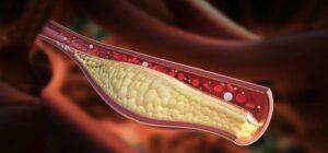 Curățarea vaselor de sânge de colesterol și cheaguri. Ce facem cu cele înfundate, pericolul este imens. Alimente care ajută