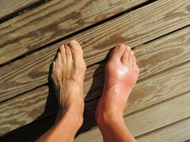 tratați articulațiile piciorului face rănile articulațiilor din cauza vremii