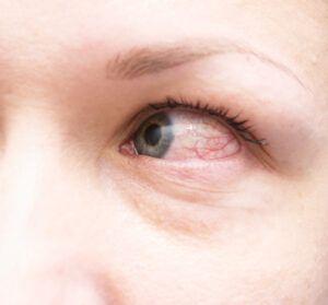 Mare grijă dacă observi asta la unul din ochi! Poate fi semn că vei suferi un accident vascular cerebral