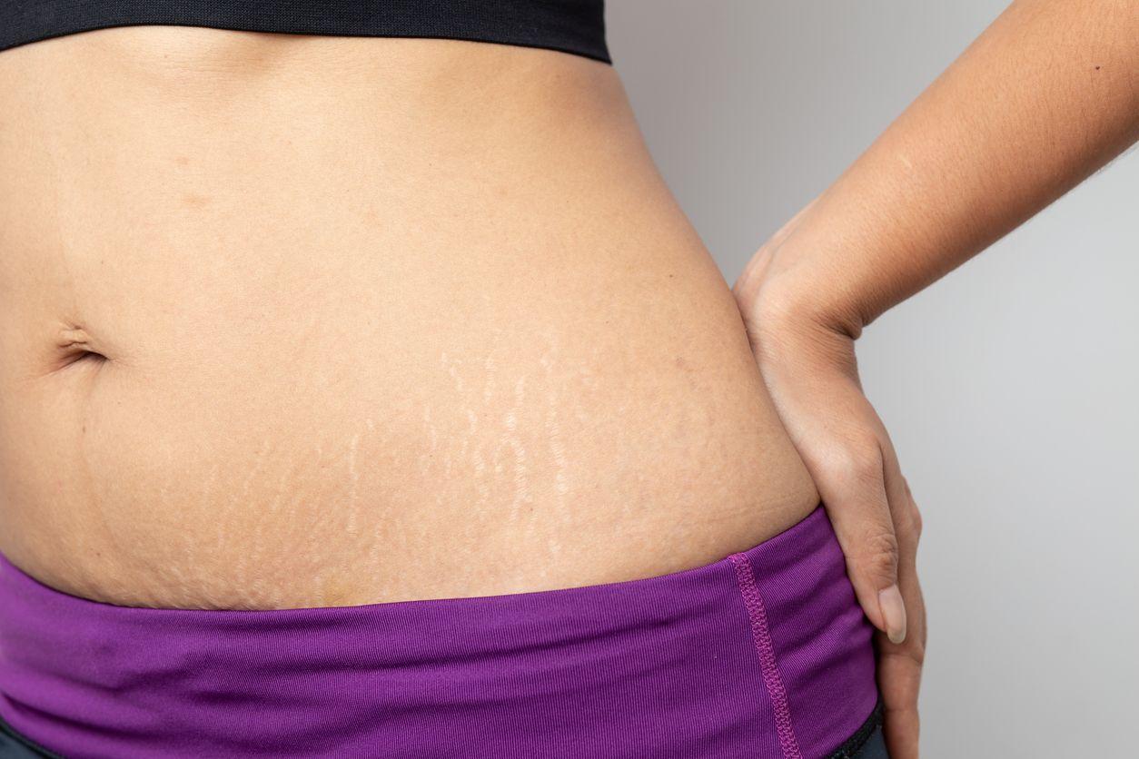 stretch marks pierdere în greutate înainte de după